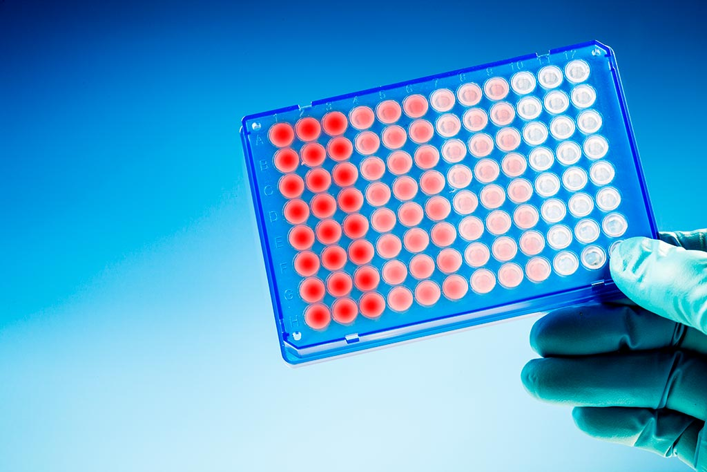 Stem cells and its use in Germany