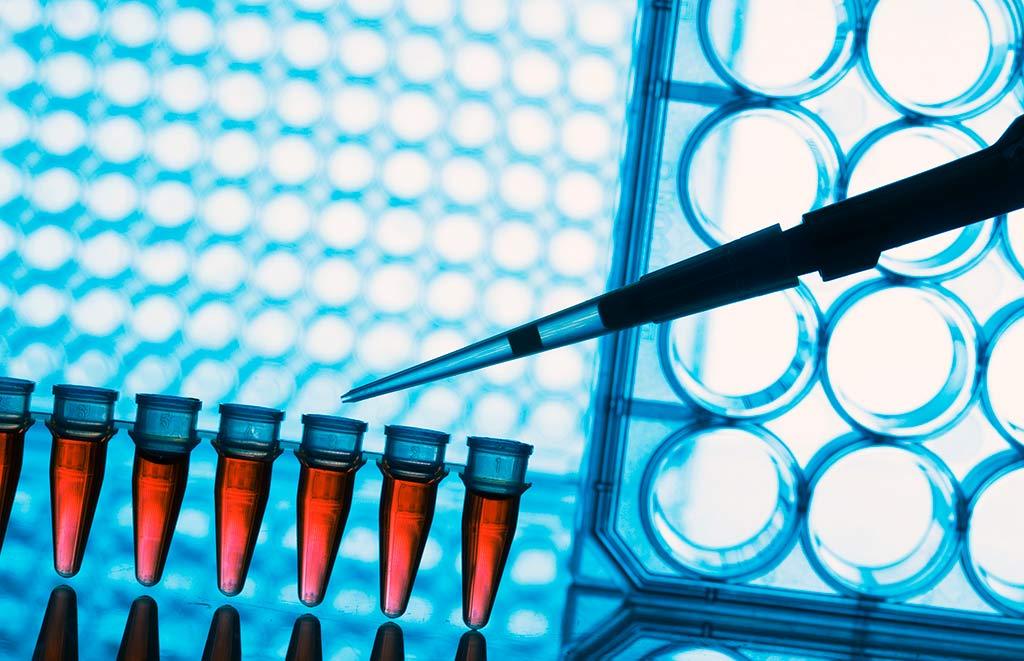 Лечение заболеваний ЦНС: клеточная терапия