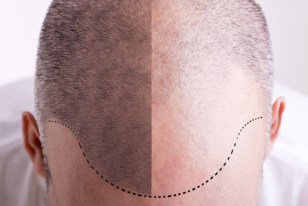 Трансплантация волос за рубежом