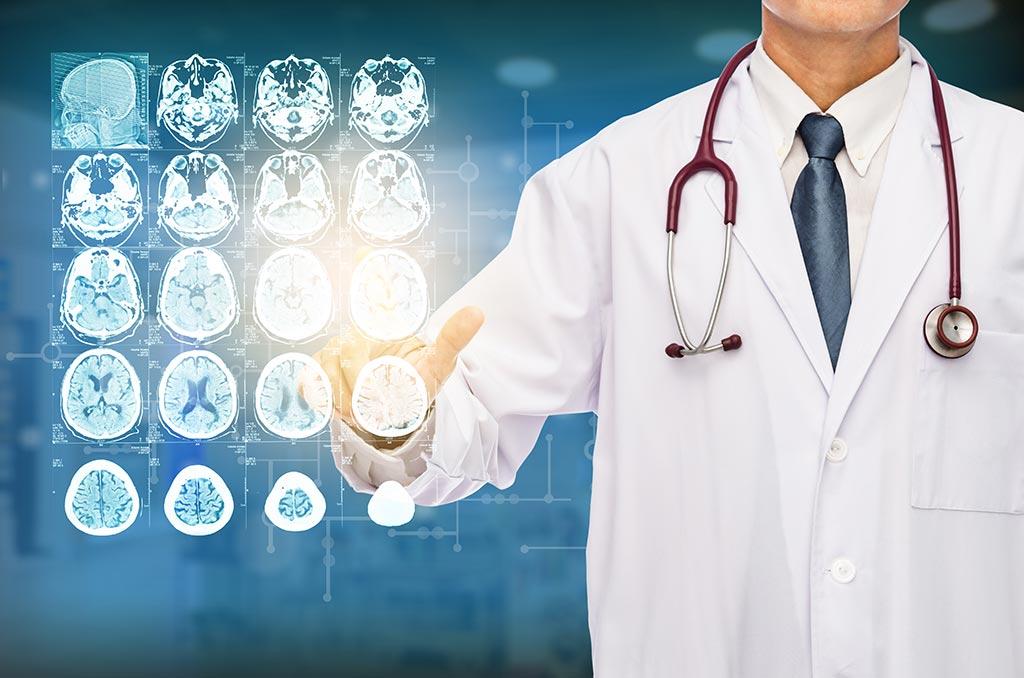 Виды опухолей головного мозга