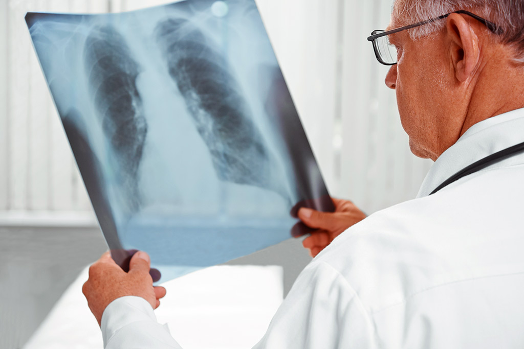 Where is it possible to treat lung cancer