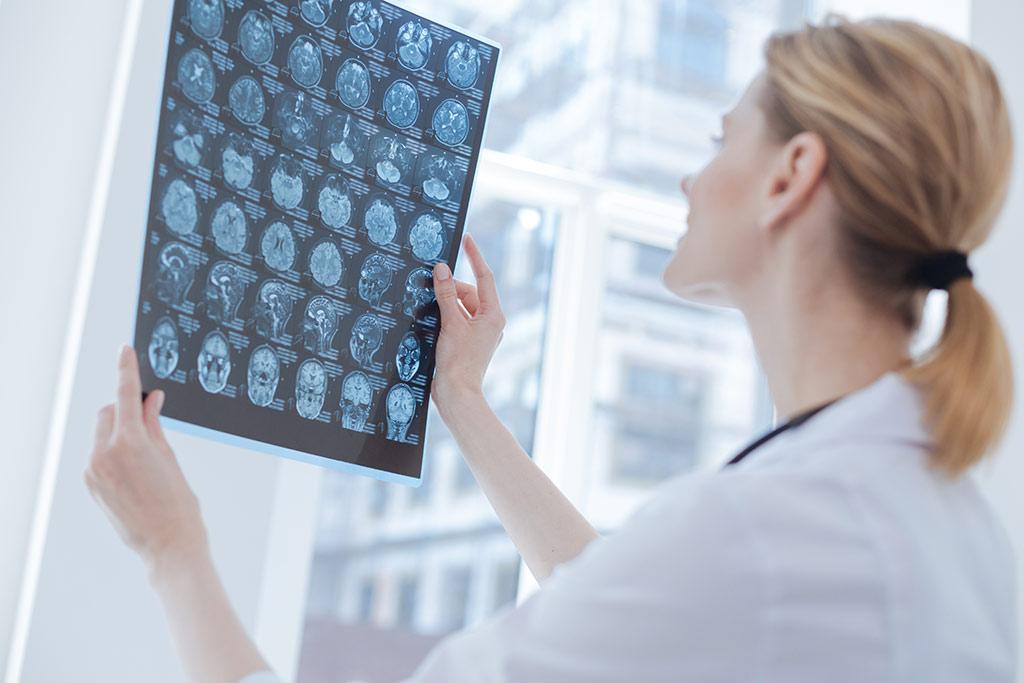 Диагностика опухоли мозга