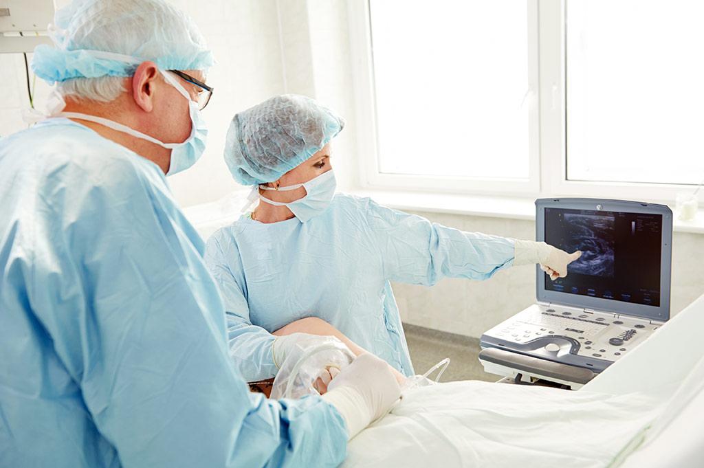 Новейшие разработки в лечении варикозного расширения вен