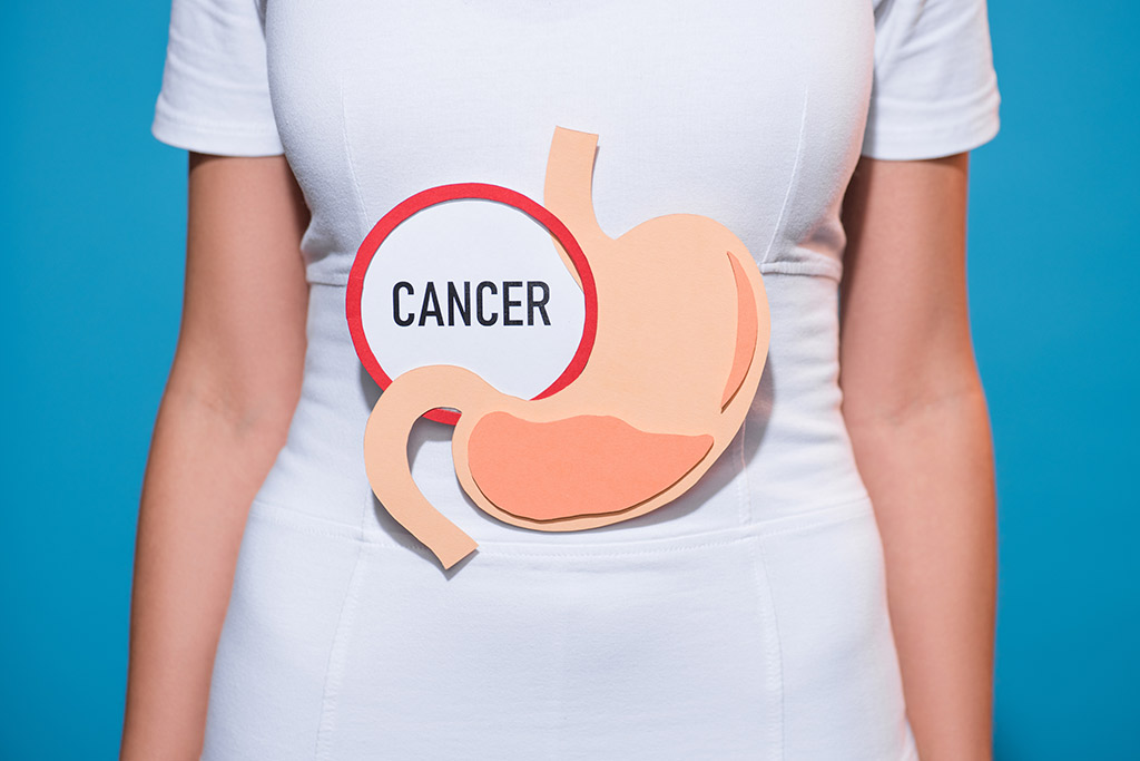Treatment of stomach cancer in Germany