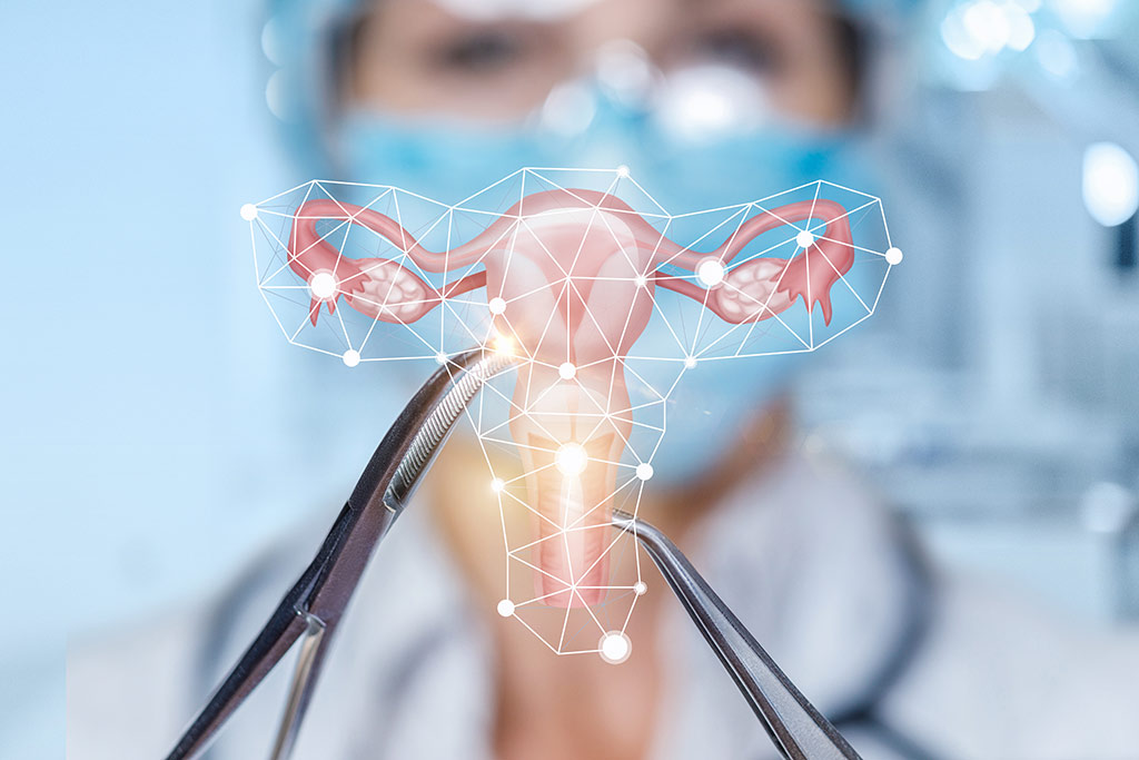 Treatment of Cervical Cancer using Conization in Germany