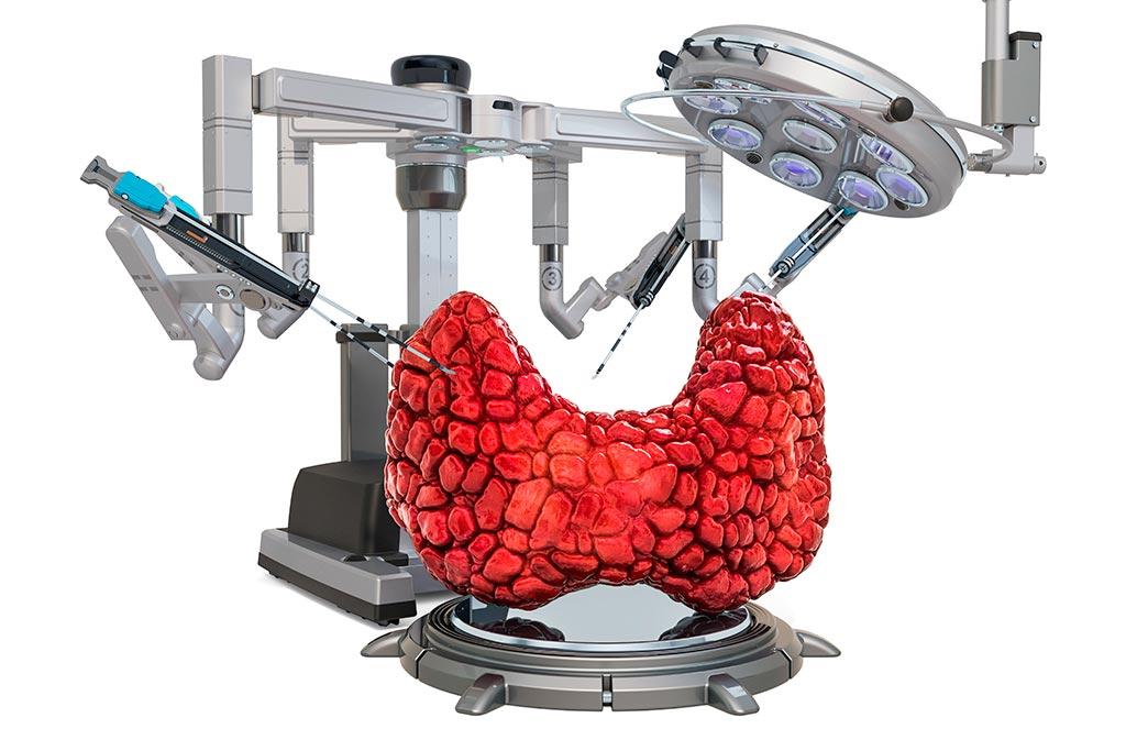 Thyroid cancer treatment options