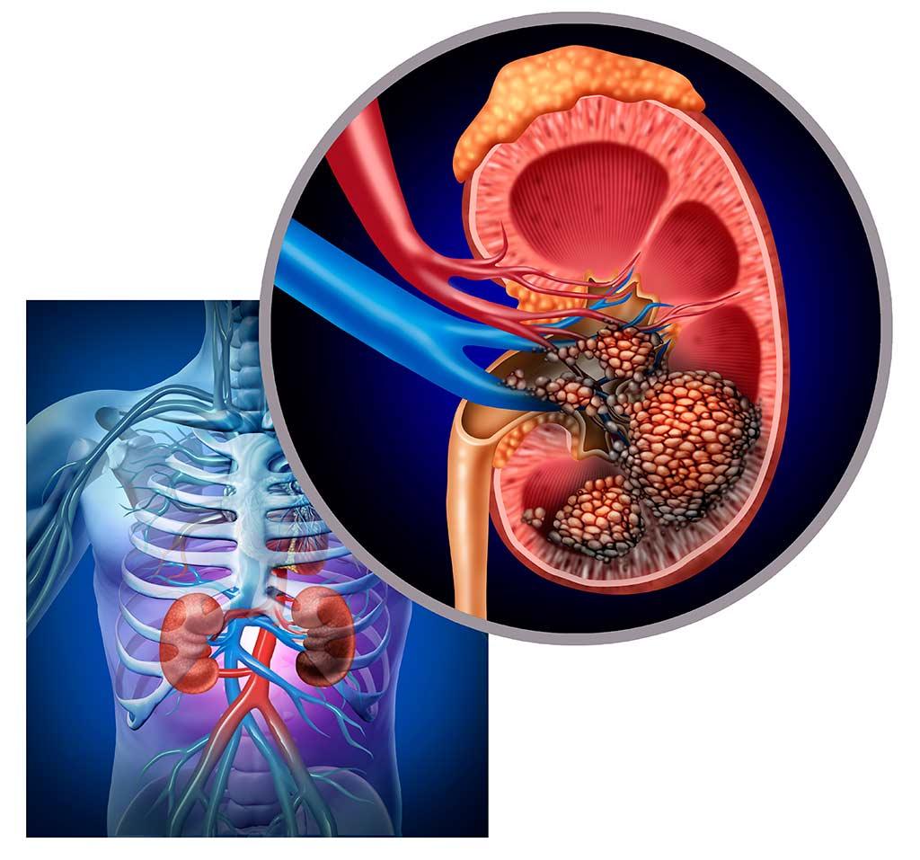 Kidney cancer: symptoms, diagnostics and treatment options