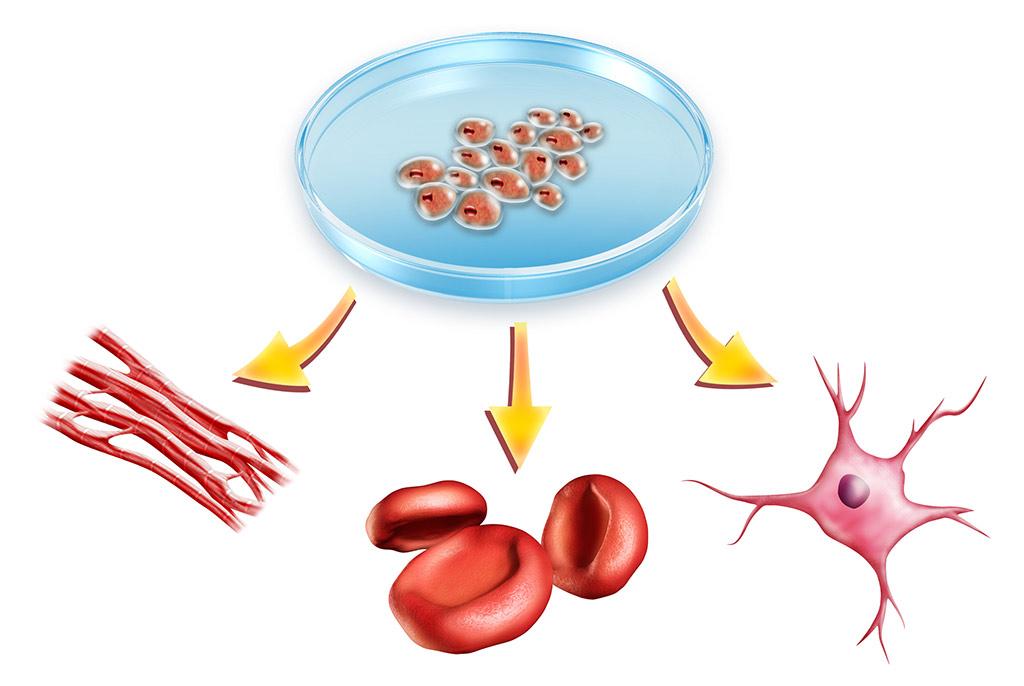 Методы лечения стволовыми клетками
