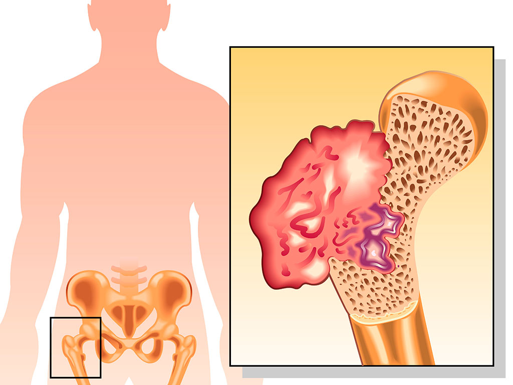 Дифференциальная диагностика остеохондромы