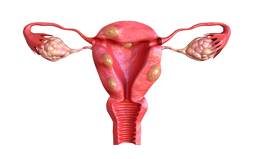 Treatment of uterine fibroids abroad