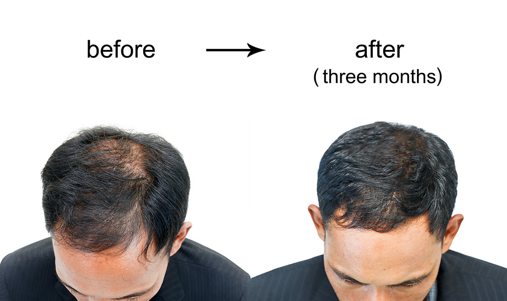 Best hair transplant clinics in Turkey