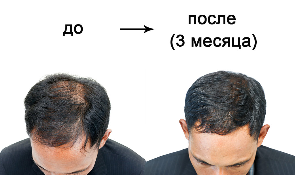 Лучшие клиники по пересадке волос в Турции