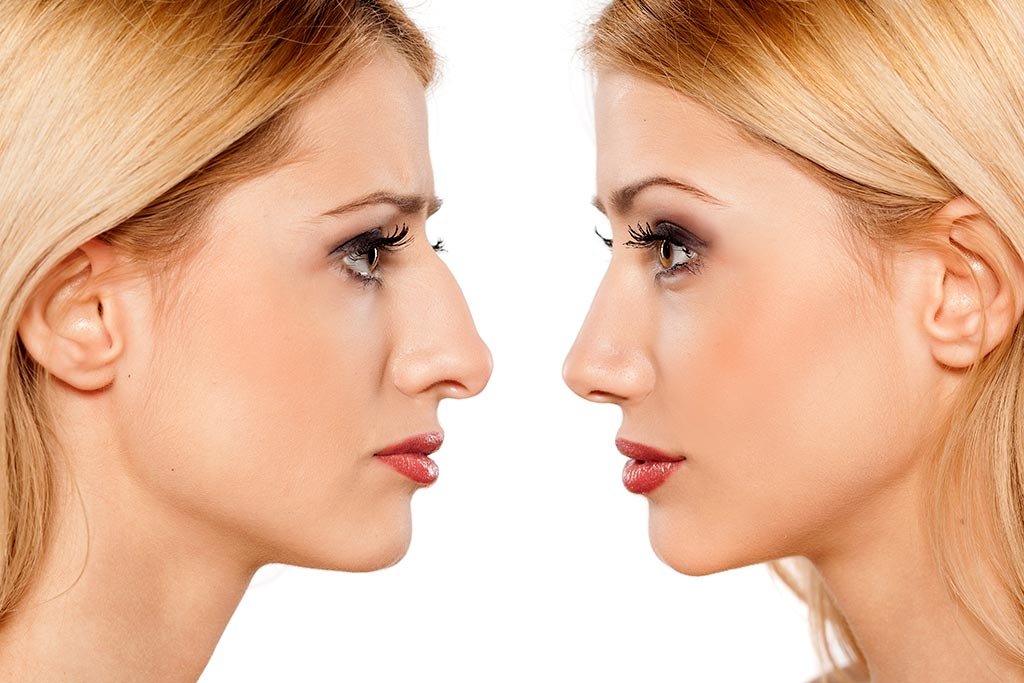 Reviews The Best Rhinoplasty Nose Job Clinic In Turkey Booking Health
