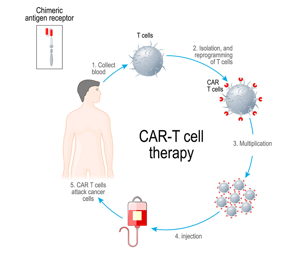 CAR T-cell therapy for cancer