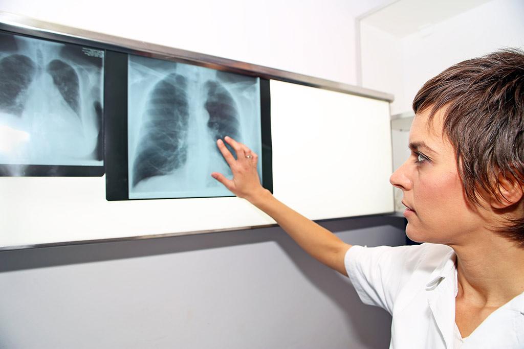 Pulmonary hypertension diagnostics