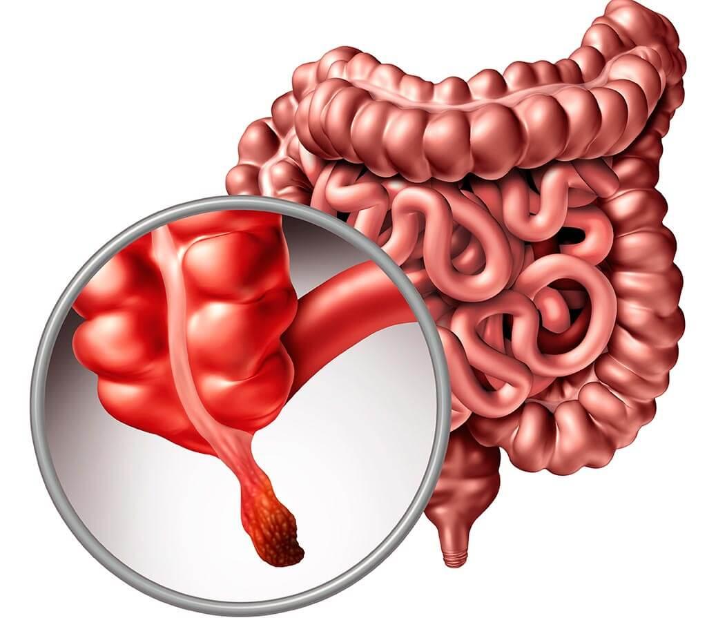 Treatment of appendicitis