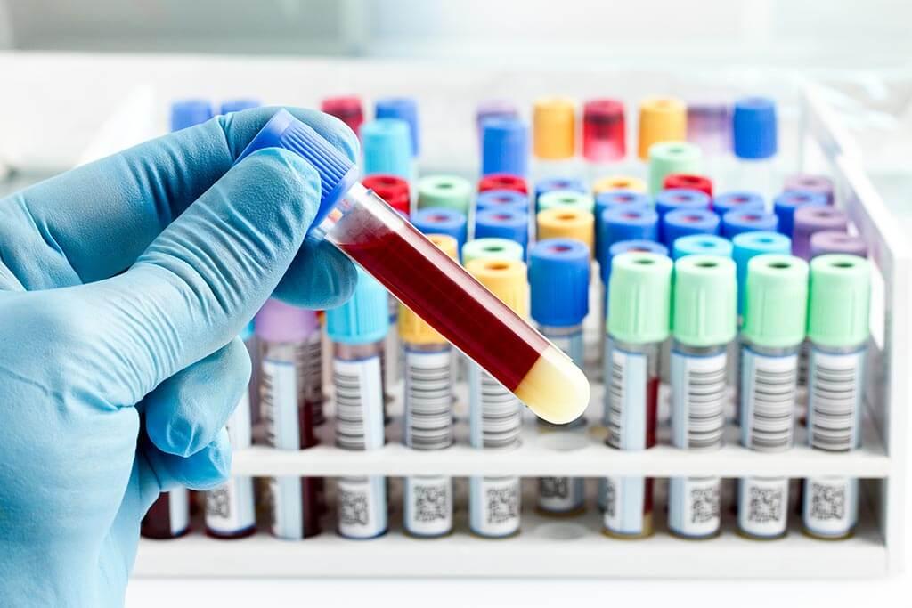 Blood test for diagnostics of lung cancer