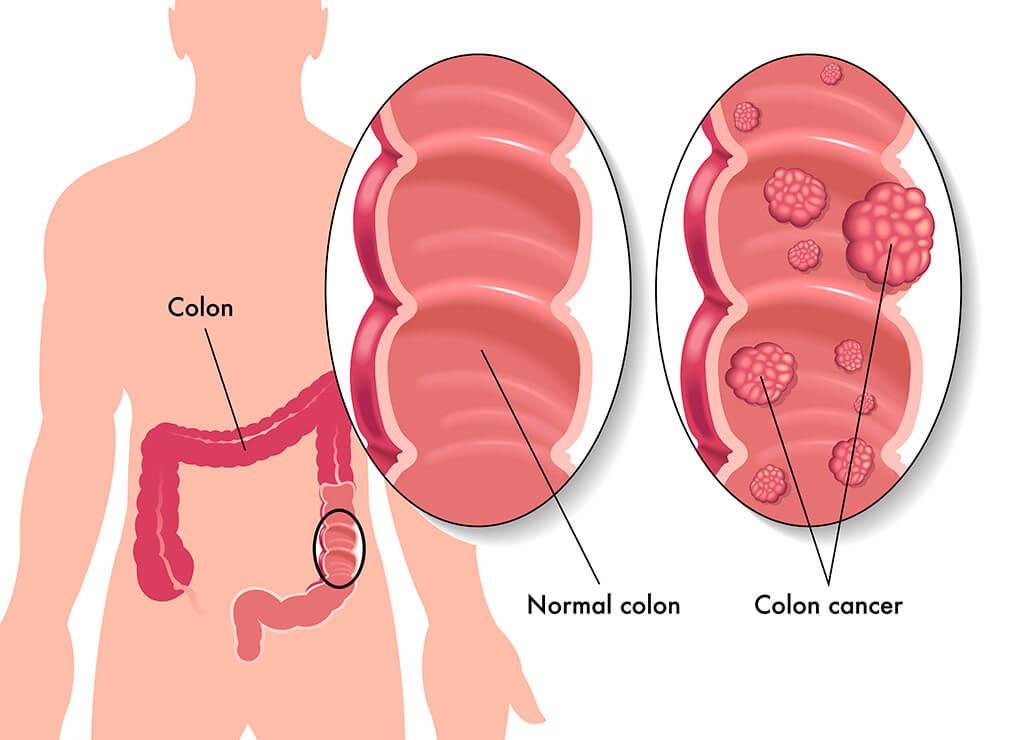 Bowel (colon) cancer