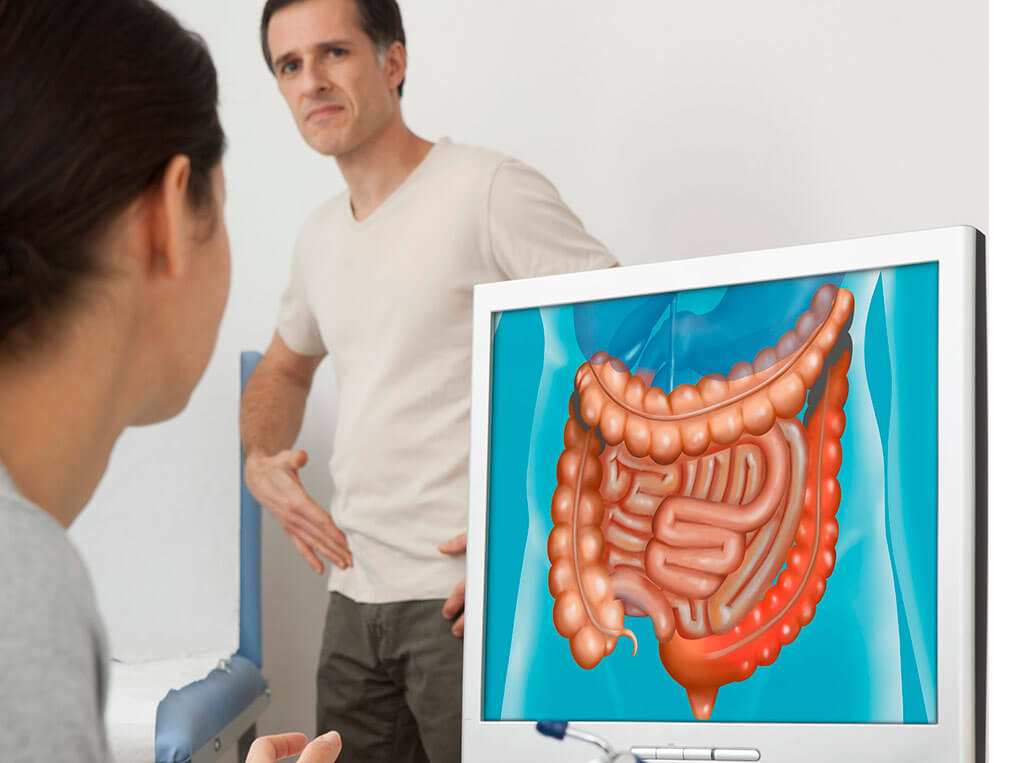 Diagnosis and treatment of bowel cancer