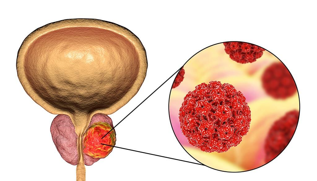 What is prostate cancer?