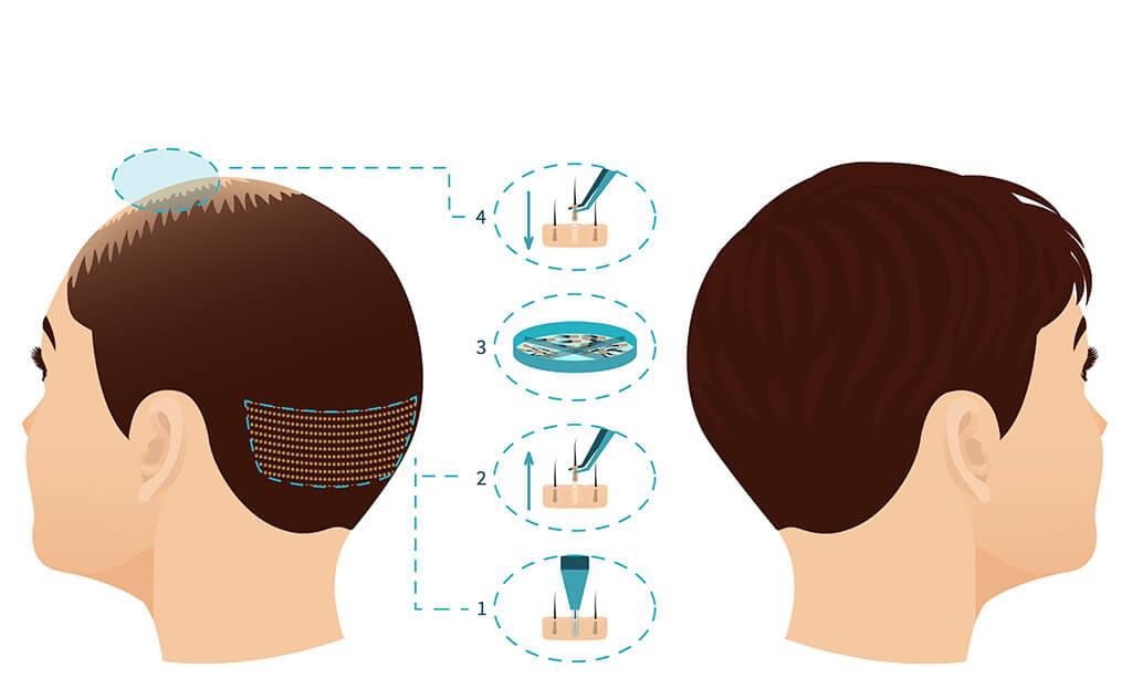 FUE (follicular unit extraction) hair transplantion