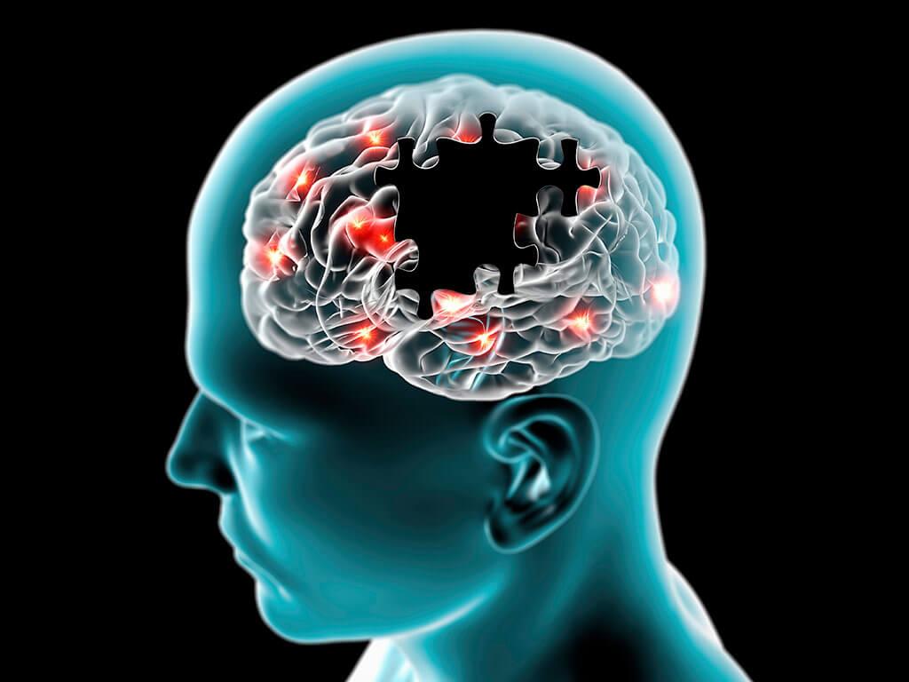 Treatment of Parkinson's disease in Germany