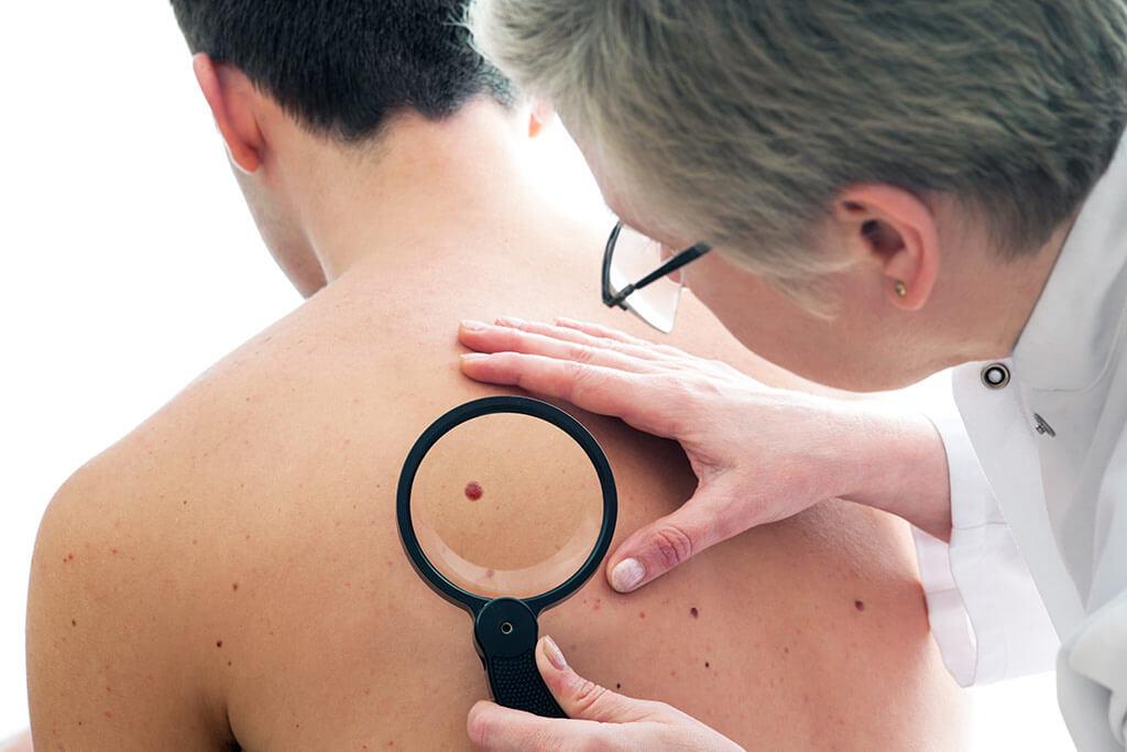 Treatment of melanoma abroad