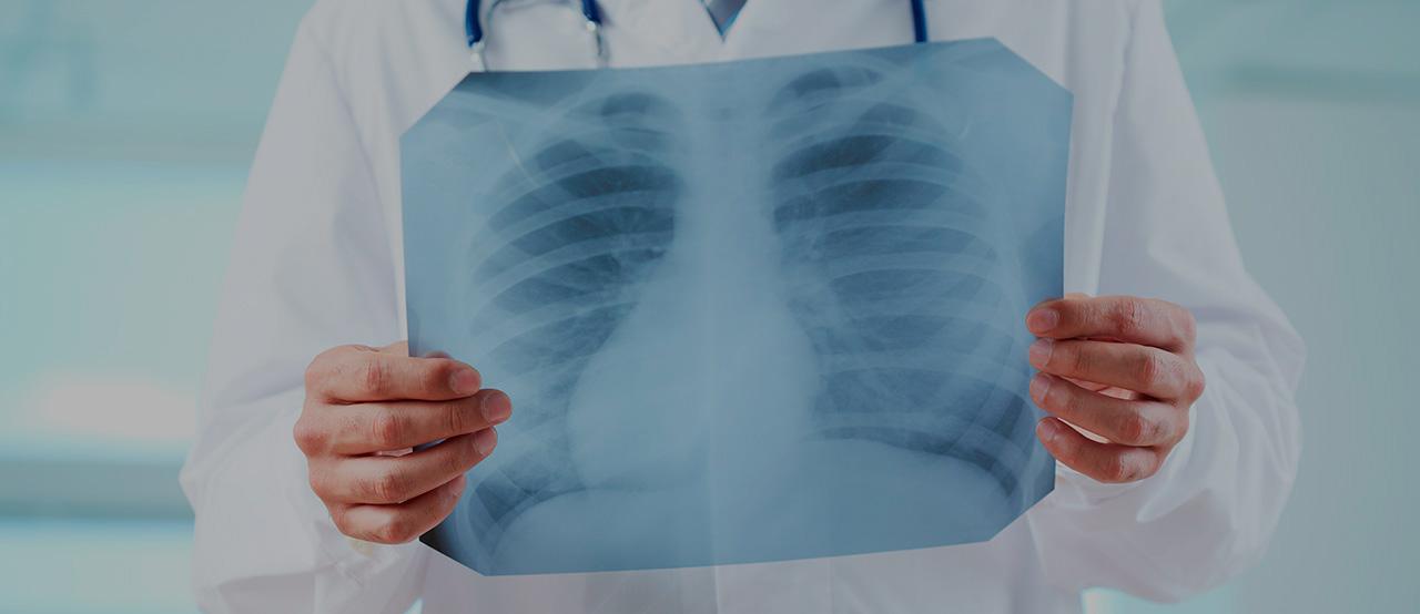 Diagnostics of lung cancer