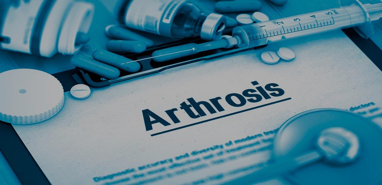 Немецкая медицина предлагает эффективные методы лечения артроза