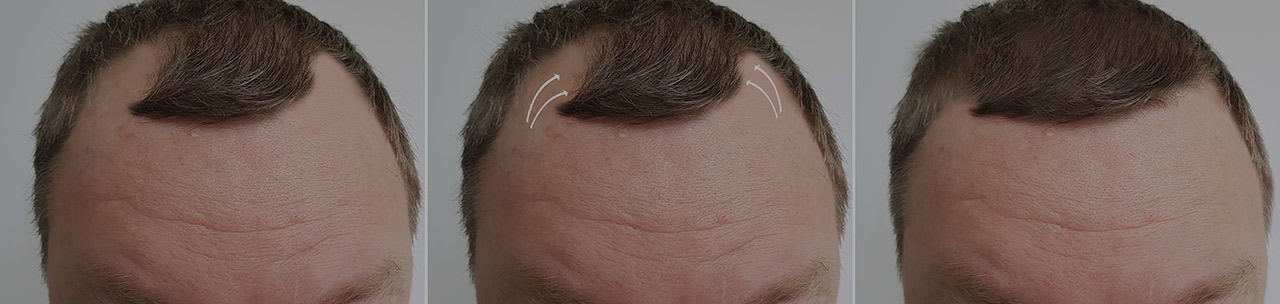 Medical Advances in Hair Transplantation