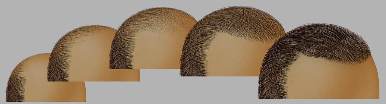 Best hair transplant clinics in Turkey: FUE hair transplantation