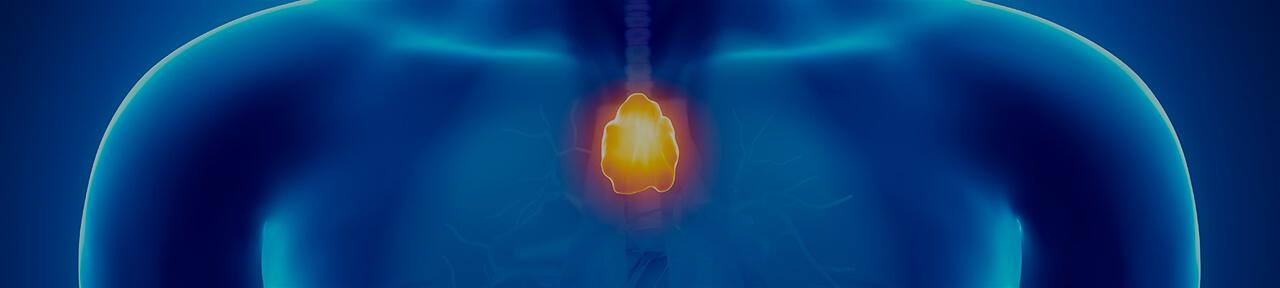Thymus cancer: symptoms diagnostics and treatment options