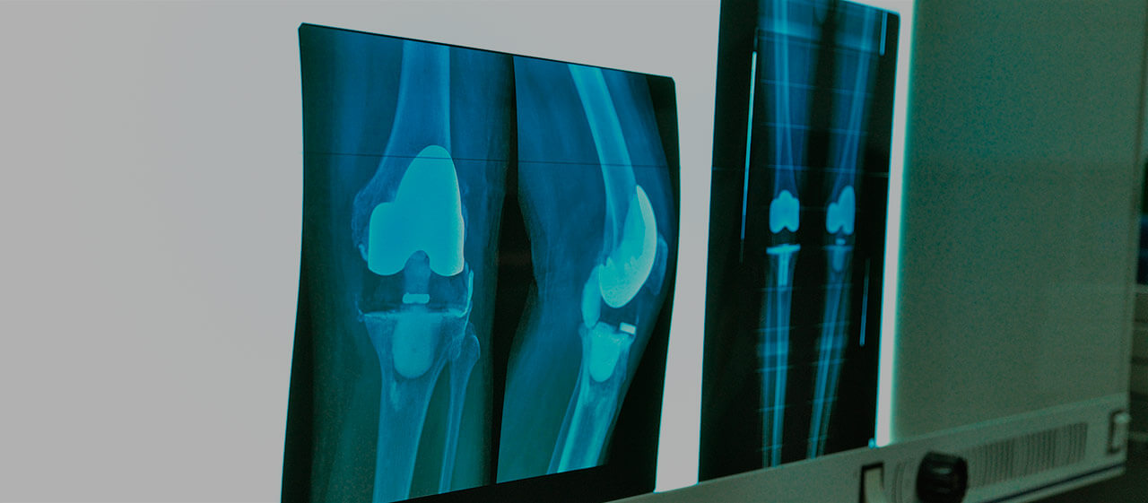 Types of joint replacement surgeries in Germany
