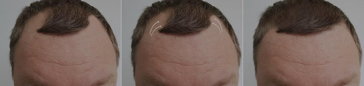Hair transplantation in Turkey