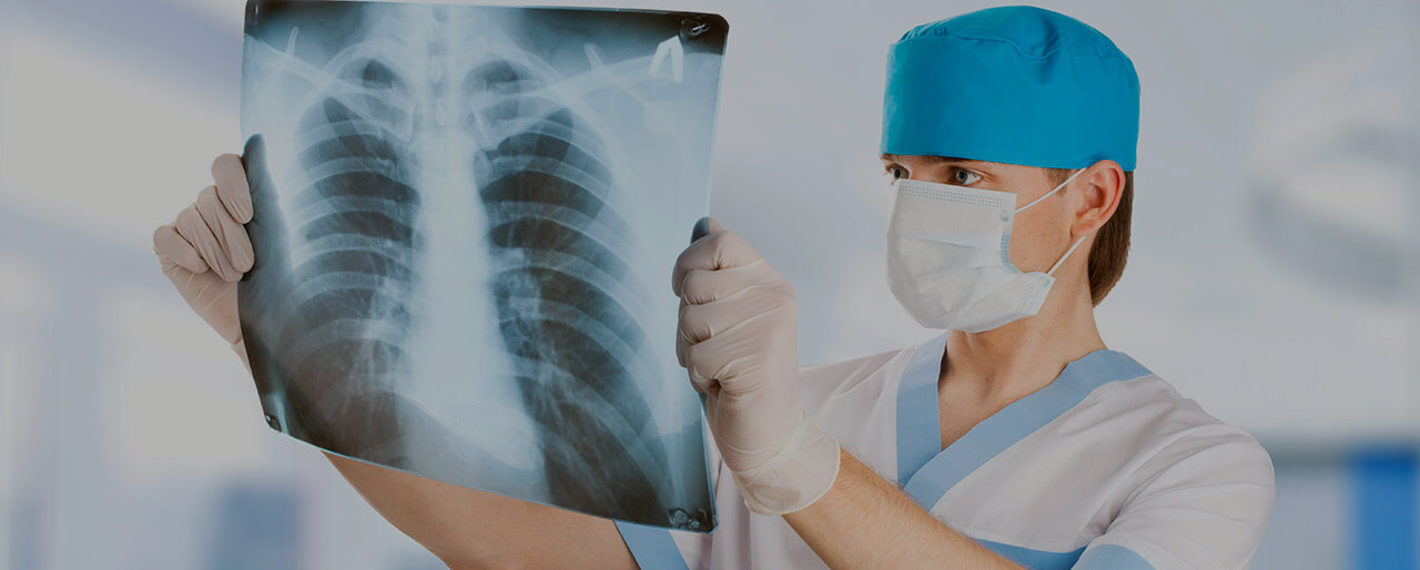 Lung cancer treatment in Germany