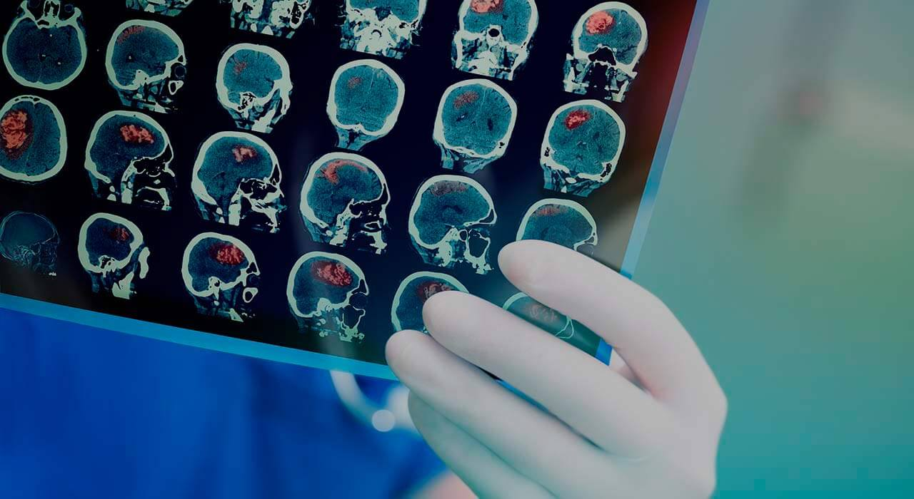 Benign brain tumors: can they be benign and dangerous at the same time?