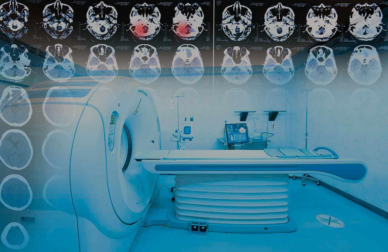 Diagnostics of brain tumors