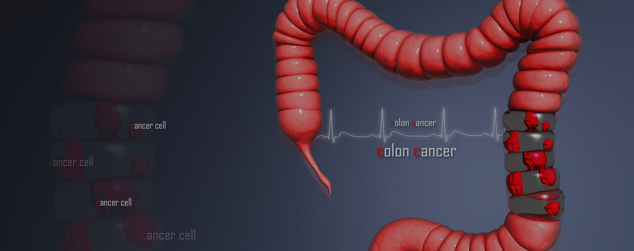 Diagnosis of bowel cancer