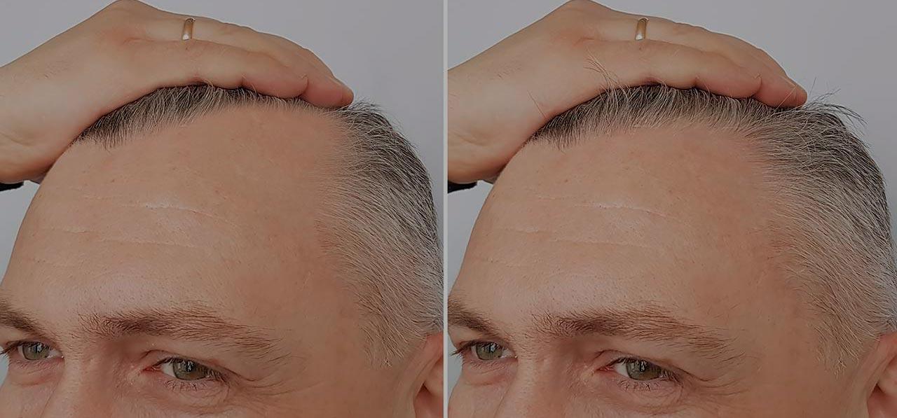 Comprehensive treatment of alopecia