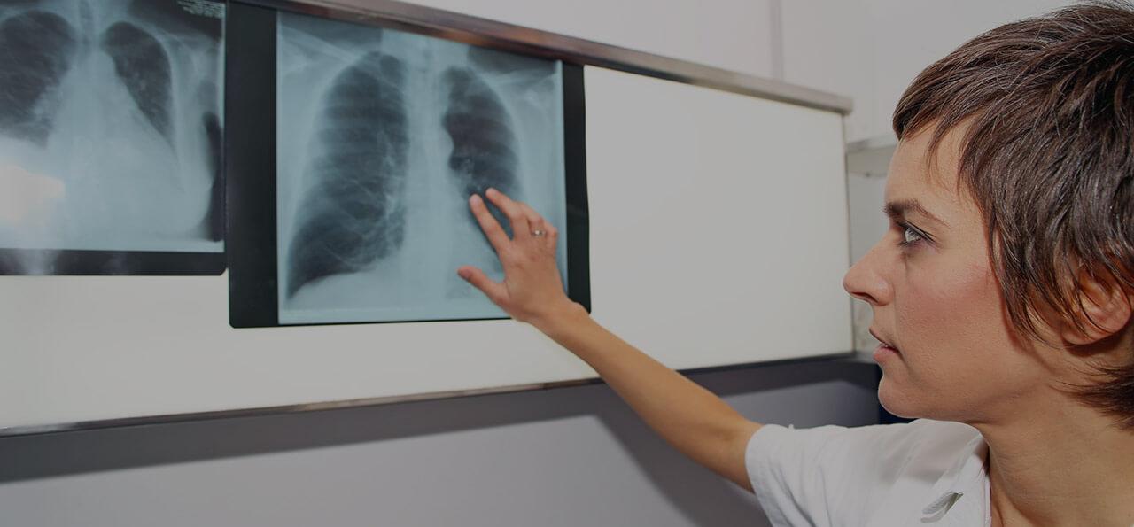 Pulmonary hypertension (PH)