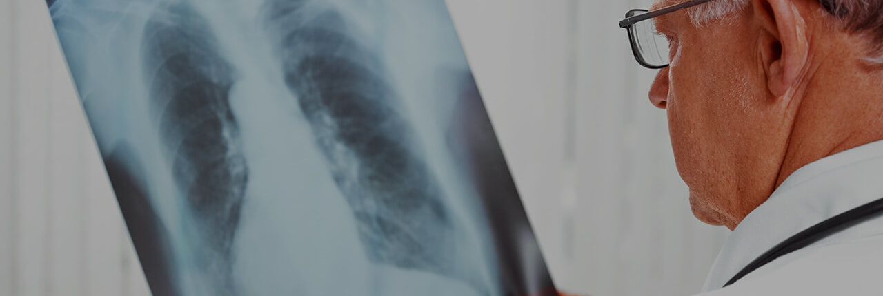 Treatment of stage 4 lung cancer in Germany